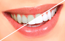 Toronto Teeth Whitening