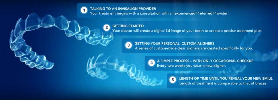 Invisalign Procedures