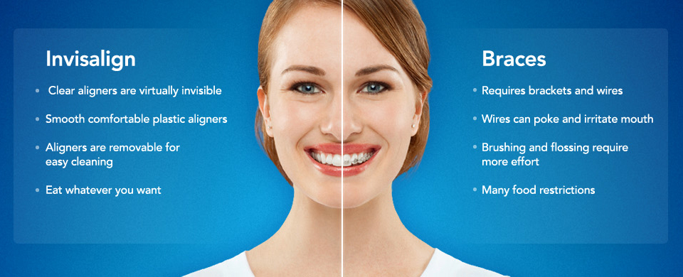 Invisalign Vs Normal Braces