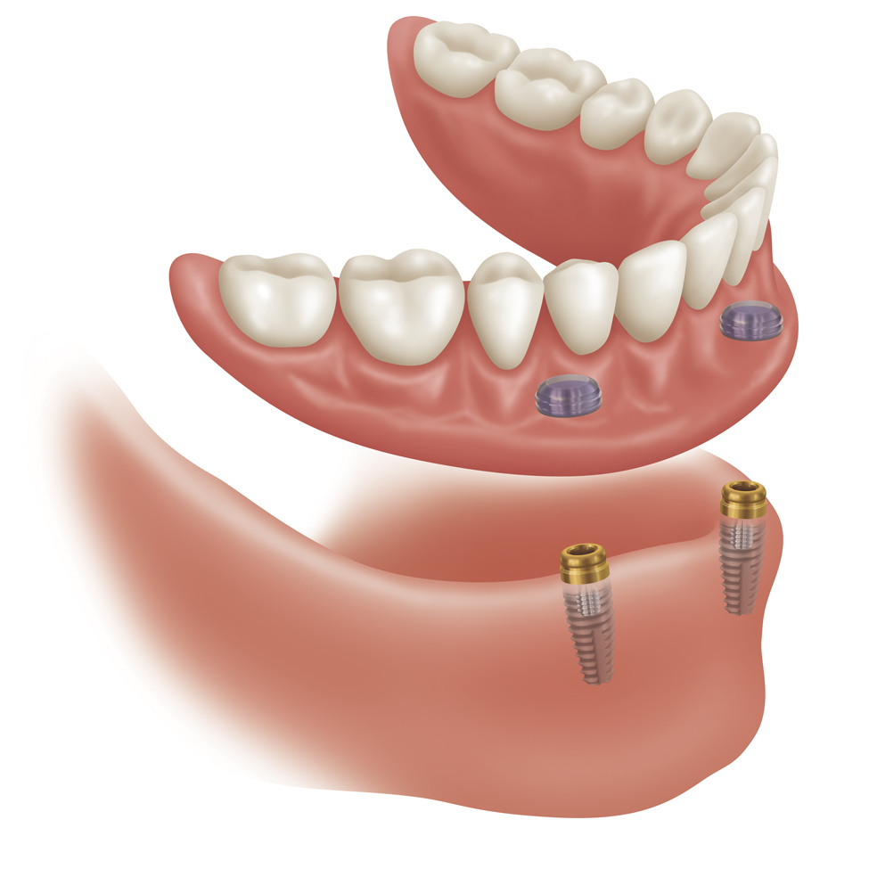 dental prothesis Dental prostheses dental prostheses are used to replace missing teeth due to periodontal disease, grossly broken down and non-restorable teeth, teeth lost due to.