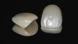 Porcelain Veneer Services